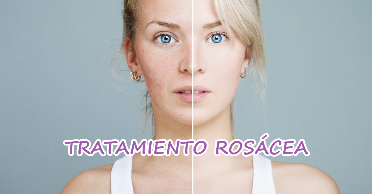 Tratamiento para rosácea Córdoba