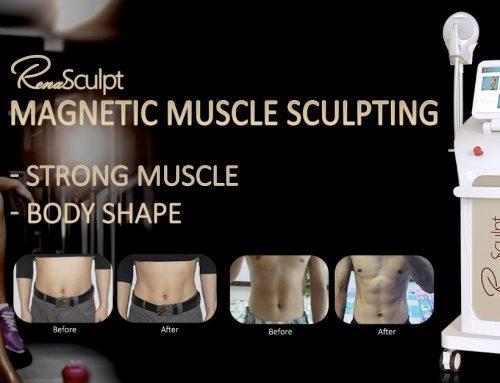 Renasculpt el nuevo tratamiento corporal